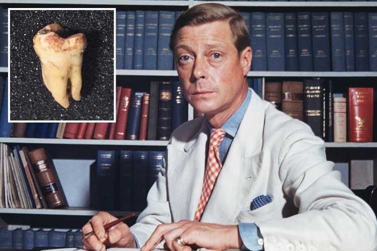 Edward VIII's wisdom tooth to be sold at auction and could fetch £10k — despite being extracted after his abdication – The Sun